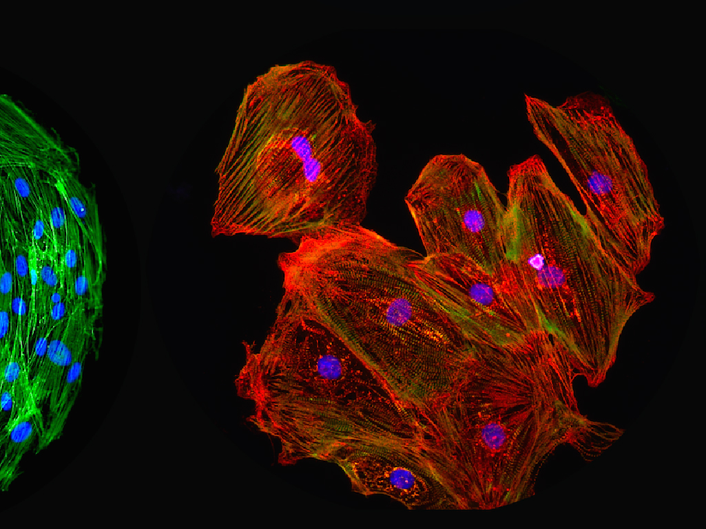 Krypton Sponsor | Image: Asha Patel Cell Polymer Microarray